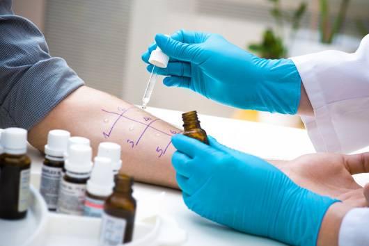 Test skórny na alergię