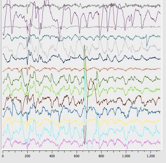 Aktywność fal mózgowych po ciasteczkach z THC