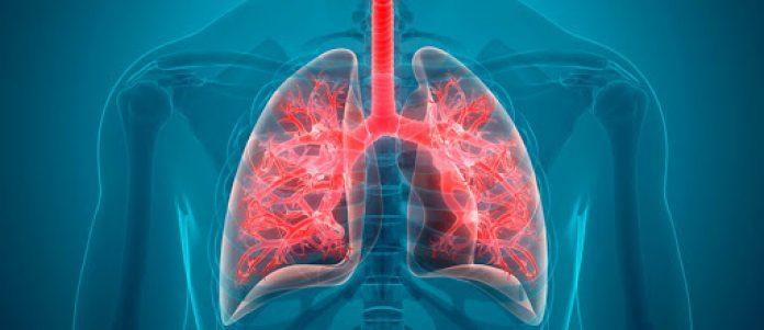 """Wspomaga leczenie nowotworów, epilepsji, artretyzmu, cukrzycy i depresji. Okazuje się też, że kannabidiol CBD – czyli związek organiczny zawarty w roślinach konopi może ograniczyć nadmierny proces zapalny w płucach, który prowadzi do śmierci osób, które zachorowały na COVID-19. Poinformowali o tym naukowcy na łamach pisma """"Cannabis and Cannabinoid Research""""."""