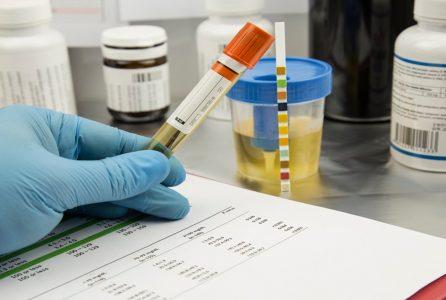 Olej CBD a test narkotykowy